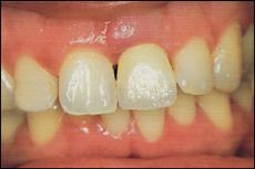 Nach der Behandlung mit Vollkeramik-Krone