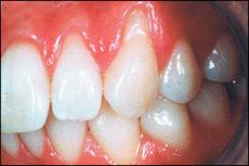 Freier Zahnhals infolge Parodontose