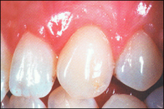 Situation nach Parodontose-Behandlung