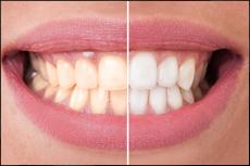 Vor und nach der Bleaching-Behandlung