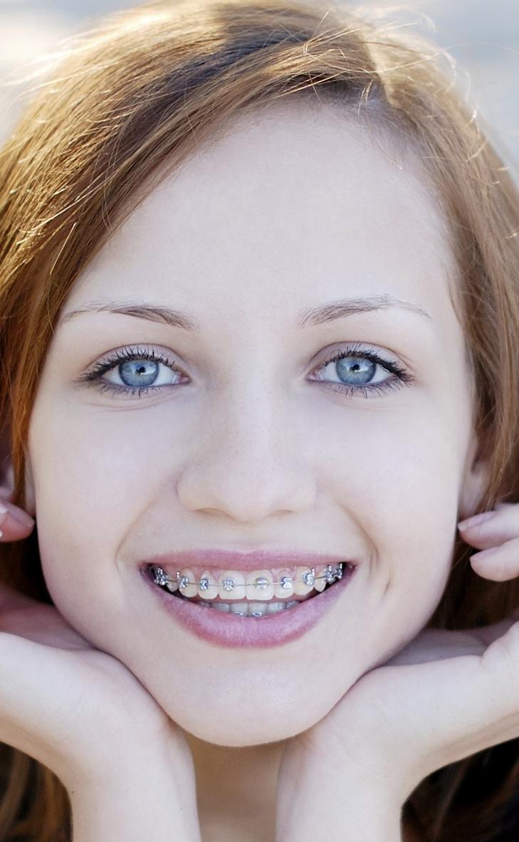 Orthodontic Treatment  For Children - Kawa Orthodontics - Braces Boca Raton - Orthodontics Kawa Orthodontics - Florida - Orthodontist Boca Raton - Invisalign boca raton