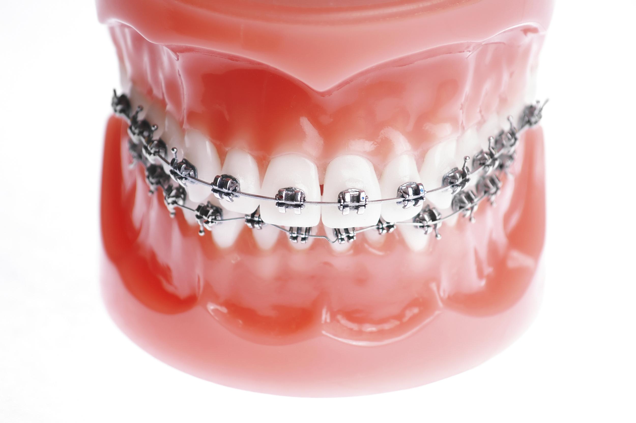 Kawa Orthodontics - Braces Boca Raton - Orthodontics Kawa Orthodontics - Florida - Orthodontist Boca Raton