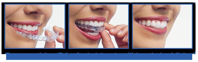Kawa Orthodontics - Braces Boca Raton - Orthodontics Kawa Orthodontics - Florida - Orthodontist Boca Raton - Invisalign boca raton