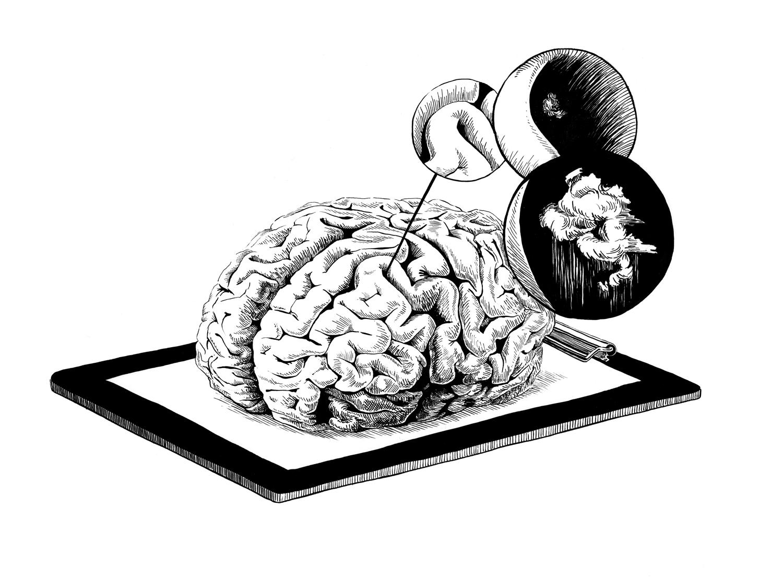 Rumpus_RememberYou_Brain.jpg