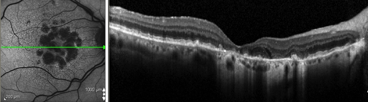 Dry degeneration or Geographic Atrophy on Autofluorescence imaging and Optical Coherence Tomography
