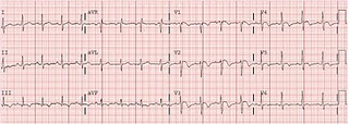 PE with anterior and inferior T inversion.jpg