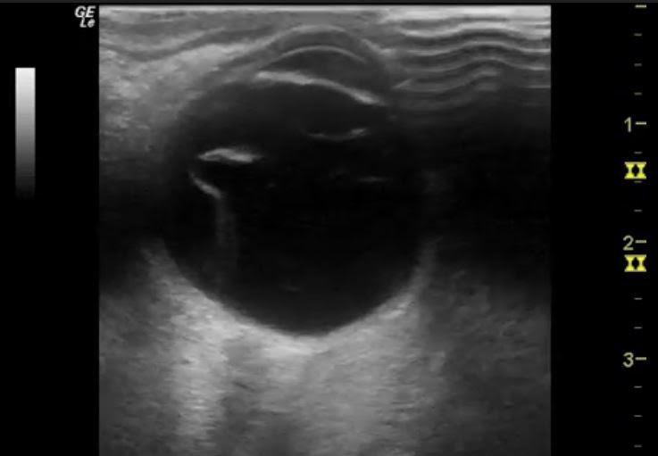 Ultrasound Case Series — ACMC EM