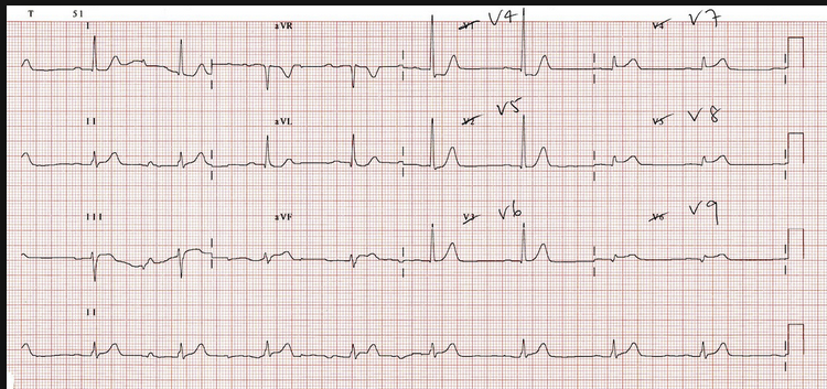 Posterior EKG showing ST elevation in posterior leads V7-9. The criteria of 0.5mm of ST elevation is not necessary to activate the cath lab.