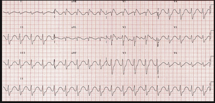 TCA Overdose EKG. Wide terminal R wave in AVR and wide QRS complex in all leads. Treat with IV bicarb.