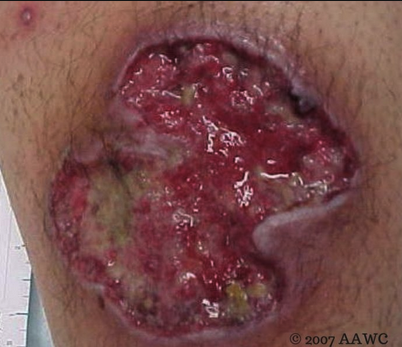 "Pyoderma gangrenosum (PG) is an inflammatory condition of all ages but is most common among 20- to 50-year-old females. Lesions can be located anywhere (most commonly on the lower extremities) and begin as a papulopustule surrounded by erythema. This pustule erodes to form a necrotic ulcer. Similar satellite pustules and ulcers form around the original lesion and eventually coalesce into a large ulcer. The surrounding border is ""rolled,"" due to the convex elevation, and has a violaceous hue. The ulcers are exquisitely tender to movement and palpation. On the extremities, the ulcers can rapidly involve muscles and tendons. Ostomy sites are a common location and make care very difficult.  Half of cases are idiopathic; the other half are associated with inflammatory bowel disease, hematologic diseases (leukemia, myelodysplasia, monoclonal gammopathy), and the arthritides. Since diagnosis is based on examination, dermatopathology, and exclusion of other causes, it is difficult to confirm. (Atlas of Emergency Medicine)"