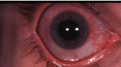 TRAUMATIC IRITIS  Patients with posttraumatic iritis usually present 1 to 2 days after blunt trauma to the eye, complaining of photophobia, pain, and tearing. They often have marked blepharospasm and perilimbal injection (ciliary flush). Test for pain on accommodation by having the patient first look across the room at a distant object and then quickly focus on the examiner's finger held several inches away. If near gaze causes pain, there is a high probability of iritis. The pupil may be large or small. Posttraumatic miosis develops secondary to spasm of the pupillary sphincter muscle, whereas posttraumatic mydriasis results when sphincter fibers are ruptured. Slit lamp examination will usually reveal cells in the anterior chamber, the hallmark of iritis.  Treat with a long-acting topical cycloplegic, such as 5% homatropine, four times a day for 1 week, oral anti-inflammatory medication, and dark sunglasses to decrease pain. Symptoms may persist for up to 1 week. Although ocular steroids decrease inflammation, prescribe them only after consultation with the ophthalmologist who will see the patient in follow-up.