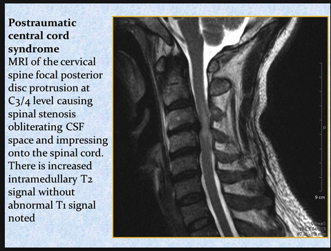 Central Cord Syndrome is the most common spinal cord syndrome. It is seen most commonly in elderly patients with hyper-extension cervical spine injuries.