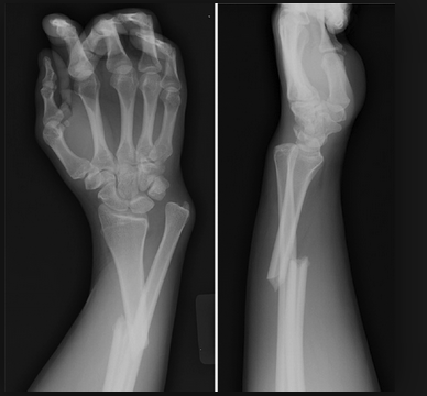 Galeazzi Fracture, fracture of the distal radius with radial-ulnar dislocation. This injury requires surgical management.