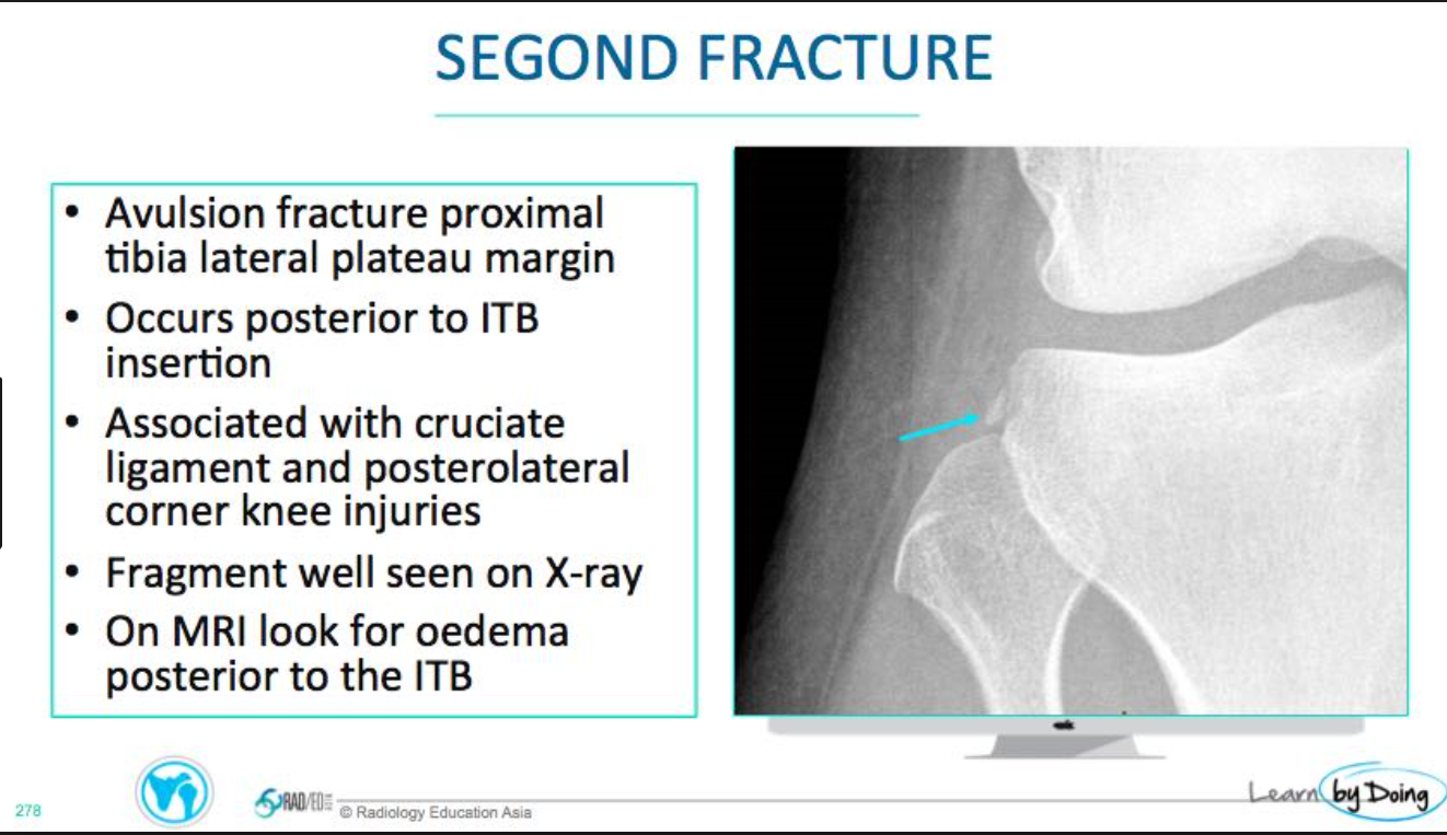 This is an avulsion of the lateral capsule and is called a Segond fracture. It has a very high (>90%) association with a tear of the anterior cruciate ligament. (Atlas of Emergency Radiology)