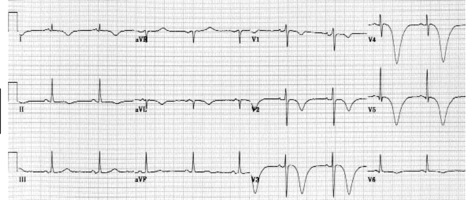 Pictured are Cerebral T waves which can be seen in subarachnoid hemorrhage. Subarachnoid hemorrhage can cause changes on the EKG such as deep t wave inversions or ST elevation.   ECG Findings of Cerebral T Waves   Inverted, wide T waves are most notable in precordial leads (can be seen in any lead).  QT interval prolongation.   Pearls   These are associated with acute cerebral disease, most notably an ischemic cerebrovascular event or subarachnoid hemorrhage.  They may be accompanied by ST segment changes, U waves, and/or any rhythm abnormality.  Differential diagnosis includes extensive myocardial ischemia.  Strongly suspect an intracranial etiology in a patient with altered mental status and these electrocardiographic findings. (Atlas of EM)