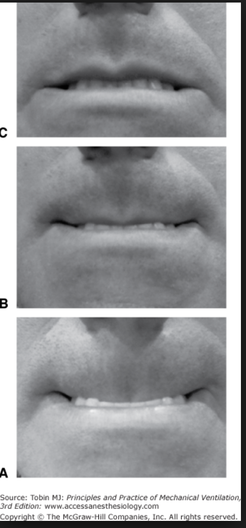 The upper lip bite test. If the patient can't bite their upper lip even a bit (picture C), that is a sign of a difficult airway. Upper lip bite test had a sensitivity of 70% and a sensitivity of >85% and an accuracy of >85% for predicting a difficult airway. 2018 Cochrane review by Roth showed that all our airway evaluation tests have relatively low sensitivity and high specificity. Not what you want in a screening test. There are no high sensitivity bedside screening tests for predicting a difficult airway. This test was the best.  With a prevalence of 10%, 10 out of 100 patients will have difficult laryngoscopy. Of these, 3 will be missed by the upper lip bite test(33% of 10). Of the 90patients without difficult laryngoscopy 7 will be unnecessarily classified as having a difficult airway.  It is the editor's opinion that it makes sense to consider BMI, neck thickness and mobility, some form of mallampati, do a 3-3-2 and assess mandibular movement if possible with the upper lip bite test.  This review looked at many scoring scales and receding jaw and mandibular movement were consistent factors in difficult airways. One investigator used basically this combination of screening tests and had pretty spot on prediction of a difficult airway.