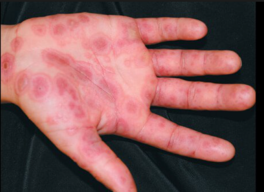 Erythema multiforme. Common precipitating factors are infection, especially with  Mycoplasma  and herpes simplex virus; drugs, especially antibiotics and anticonvulsants; and malignancies. However, the cause is often unknown. 3  Most likely, erythema multiforme is the result of a hypersensitivity reaction, with immunoglobulin and complement components demonstrated in the cutaneous microvasculature on immunofluorescent studies of skin biopsy specimens, circulating immune complexes found in the serum, and mononuclear cell infiltrate noted on histologic examination. 3  (Tintinalli 8th edition)