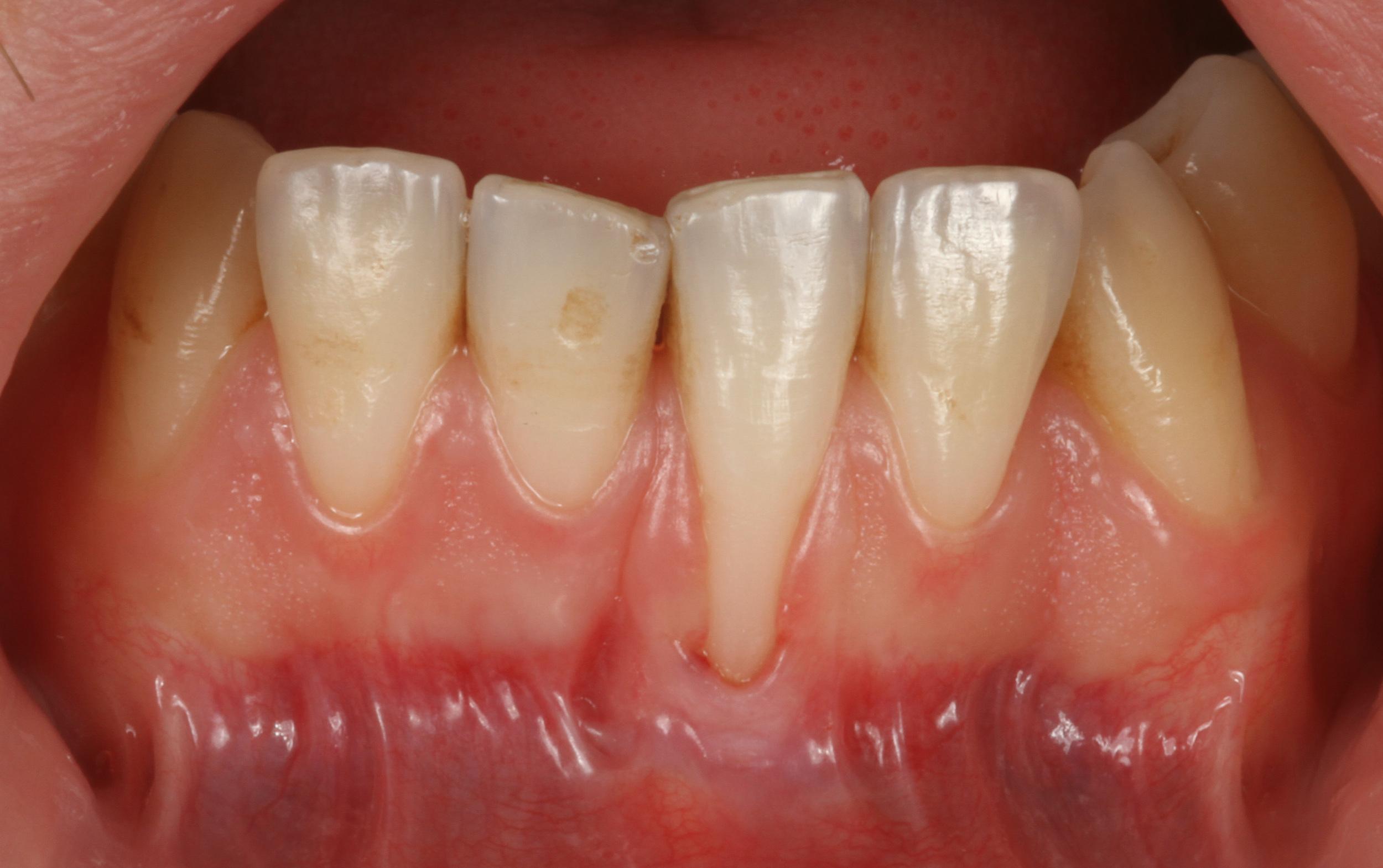 Synlige tannhalser