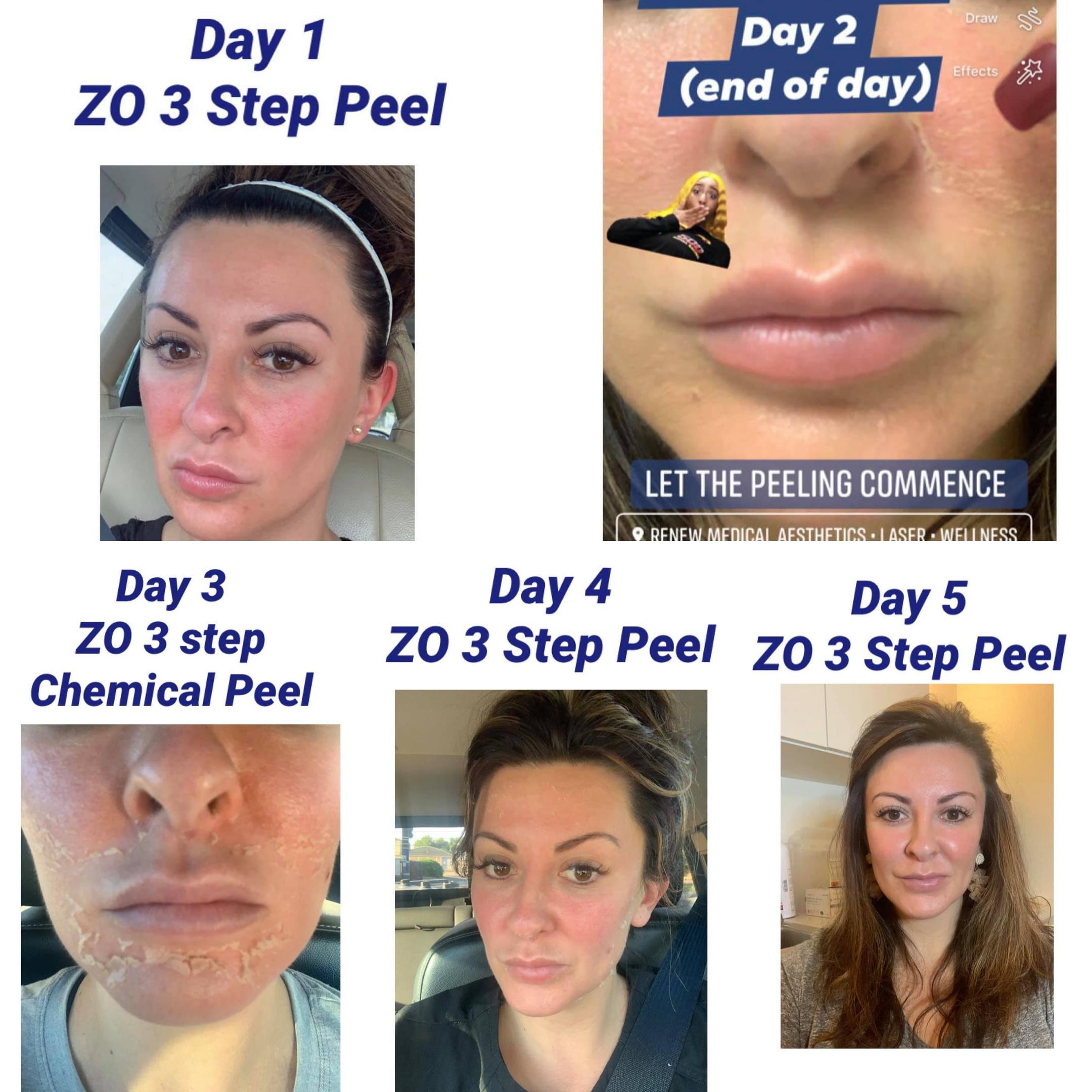 ZO® 3-Step Peel