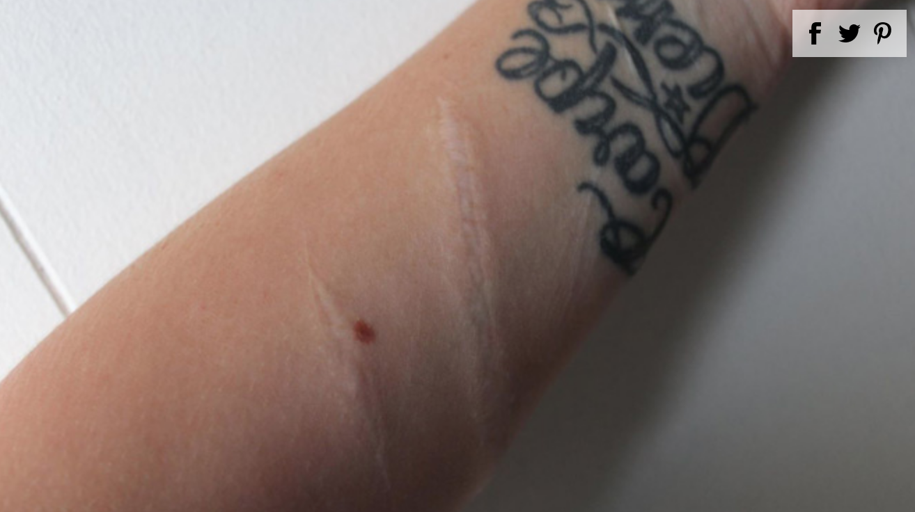 Woman Bravely Posts Scars From Failed Suicide Attempt as Warning for Teens