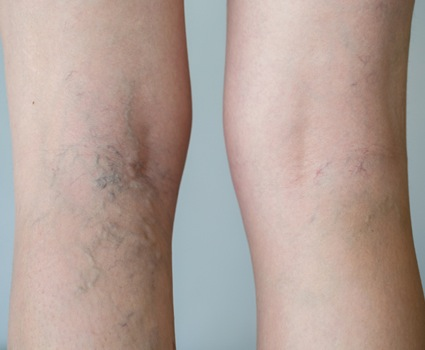 Varicose & Spider veins