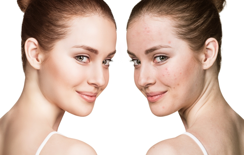 patient treated with  Microdermabrasion for Acne Scarring at siti med spa san diego
