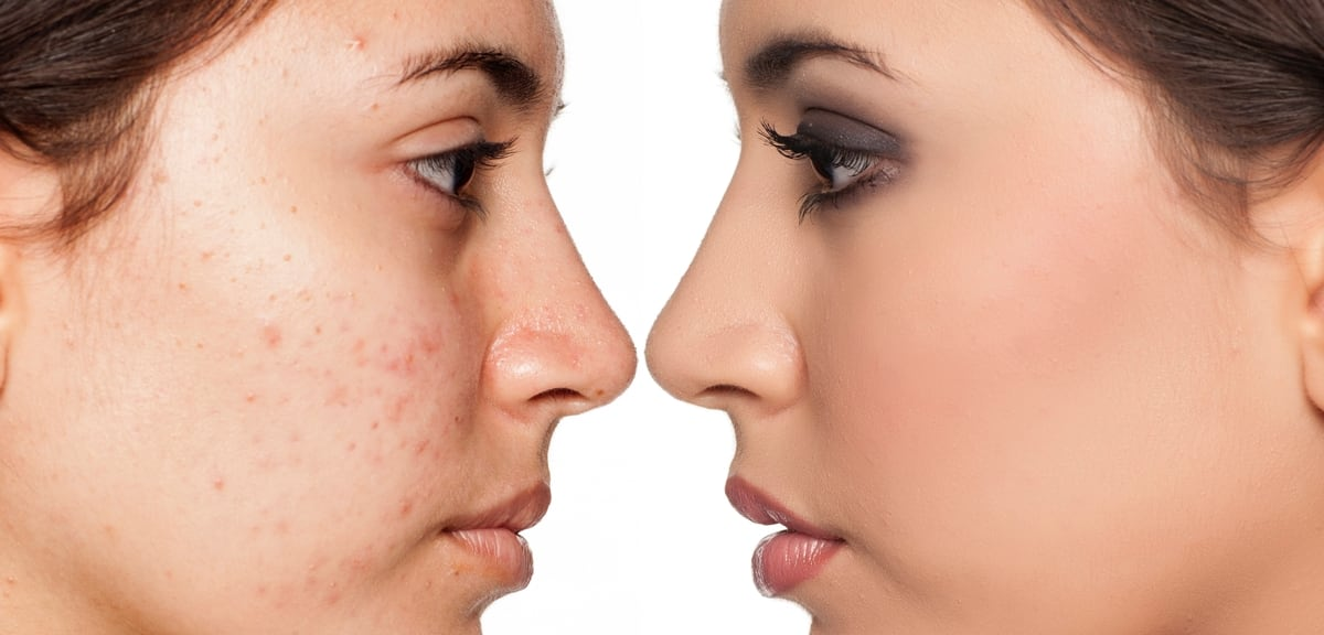 Image result for acne treatment
