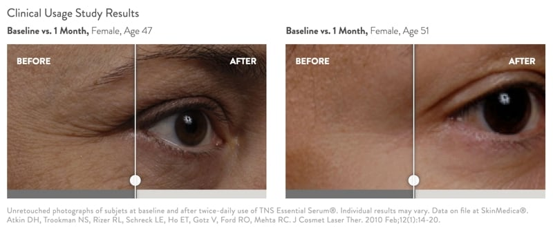 SkinMedica TNS Essential Serum  before and after photos