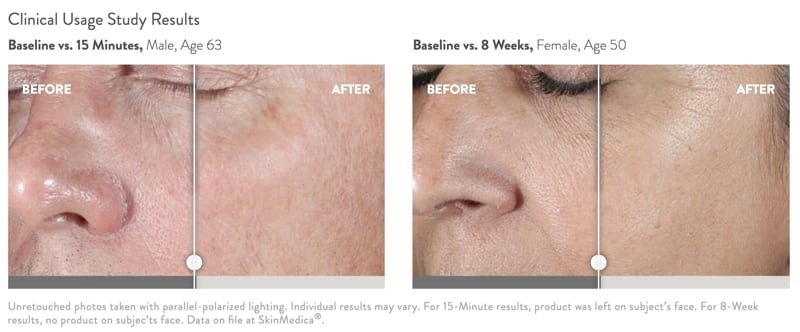 SkinMedica HA5 Rejuvenating Hydrator before and after photos