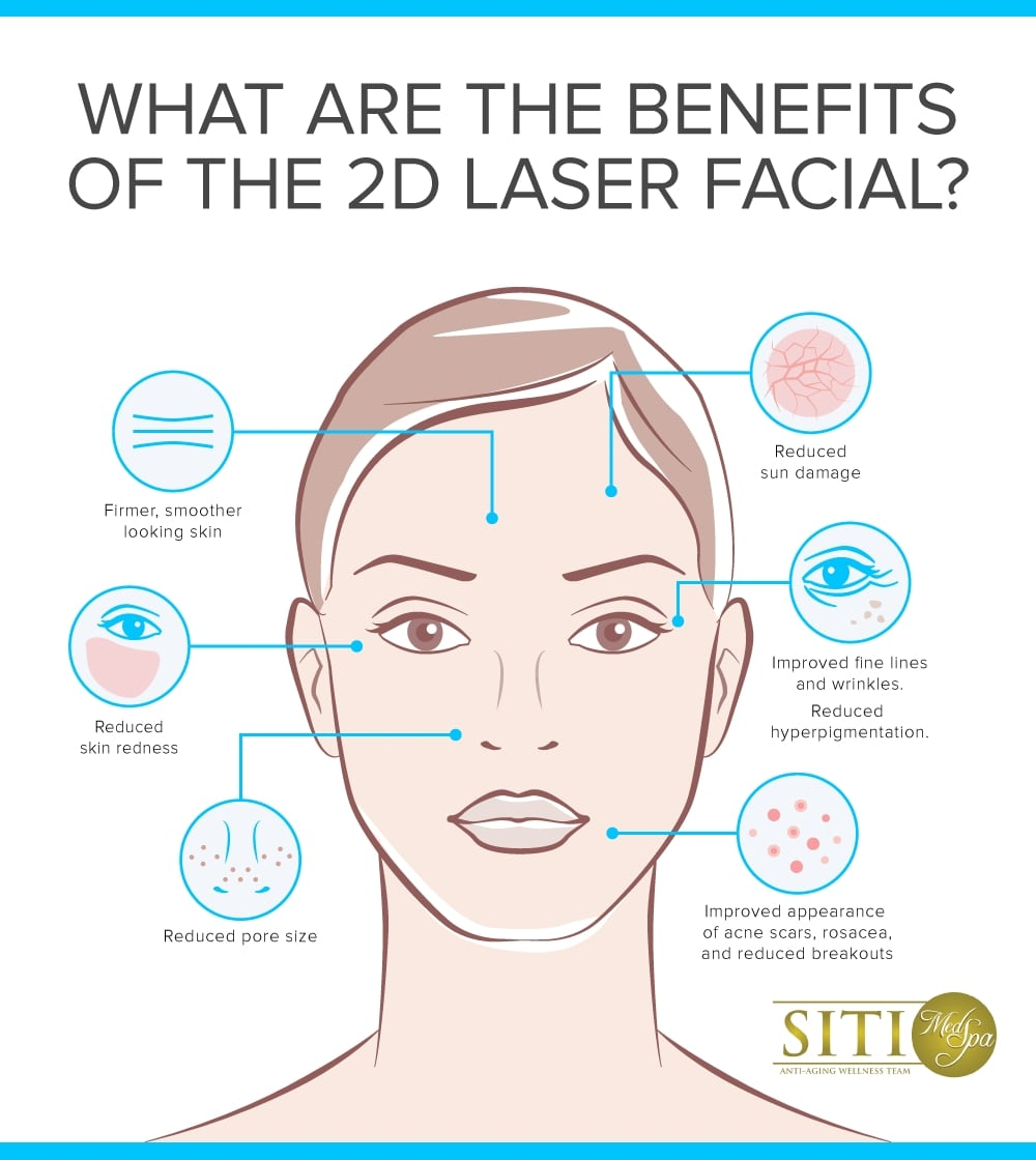 Collagen Boosting 2d Laser Facial In San Diego At Siti Med Spa