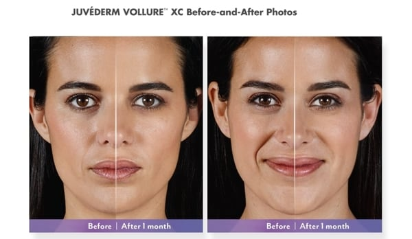 Juvederm vollure xc before after photos