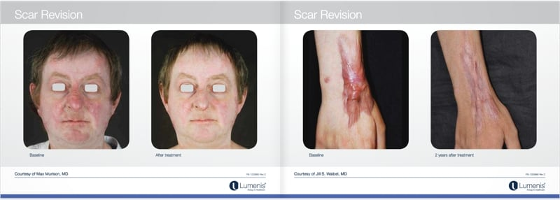Scar-removal-san-diego-before-and-after-photos-4.jpg