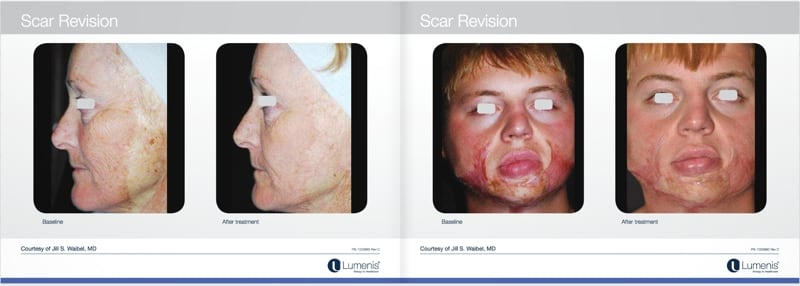 Scar-removal-san-diego-before-and-after-photos-2.jpg
