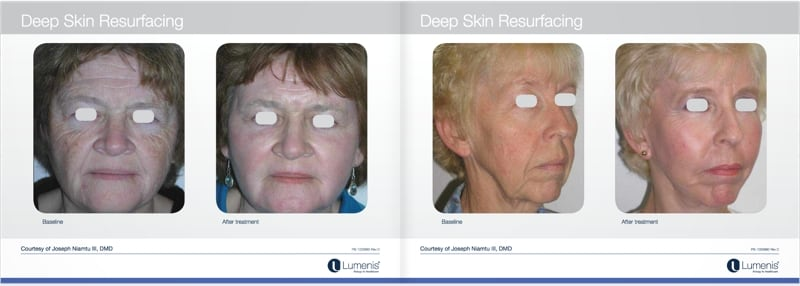 Total-fx-laser-skin-resurfacing-before-and-after-photo-1.jpg
