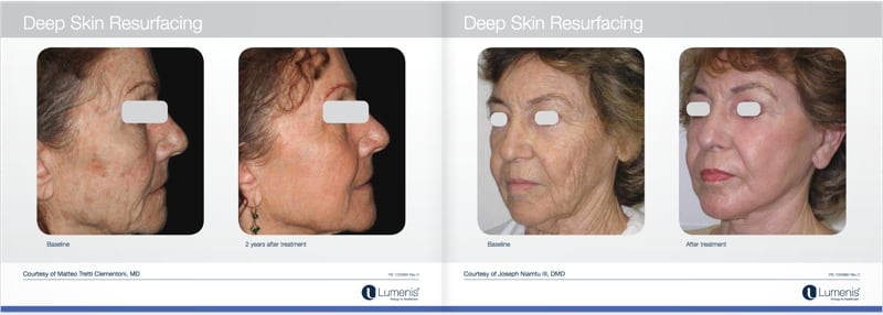 Total-fx-laser-skin-resurfacing-before-and-after-photo-2.jpg
