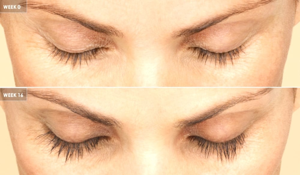 Latisse Is Best Treatment for Thinning Eyelashes