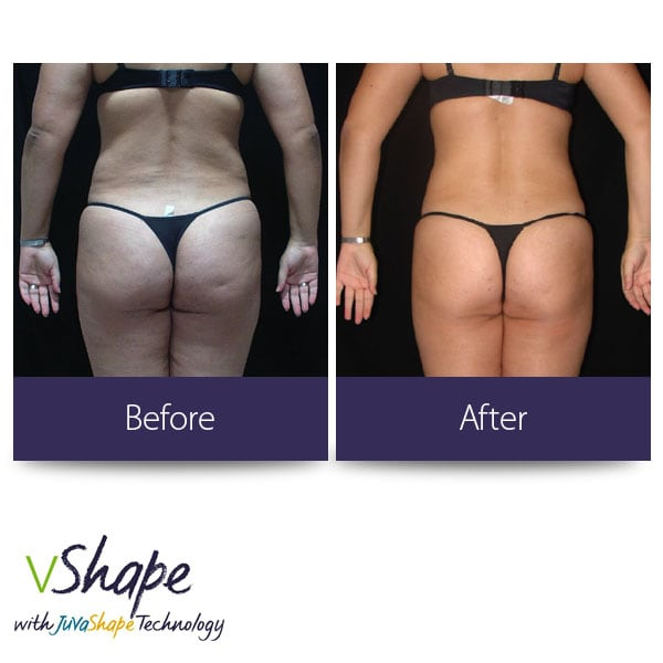 Juvashape-before-and-after-butt-san-diego-siti-med-spa.jpg