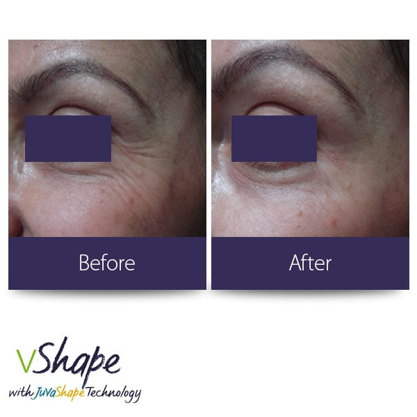Juvashape-before-and-after-crows-feet-san-diego-siti-med-spa.jpg