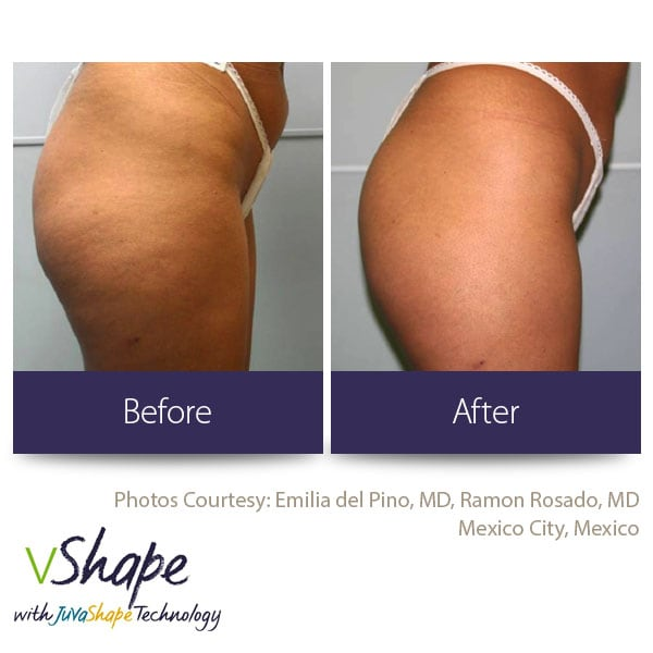 Juvashape-before-and-after-side-butt-san-diego-siti-med-spa.jpg