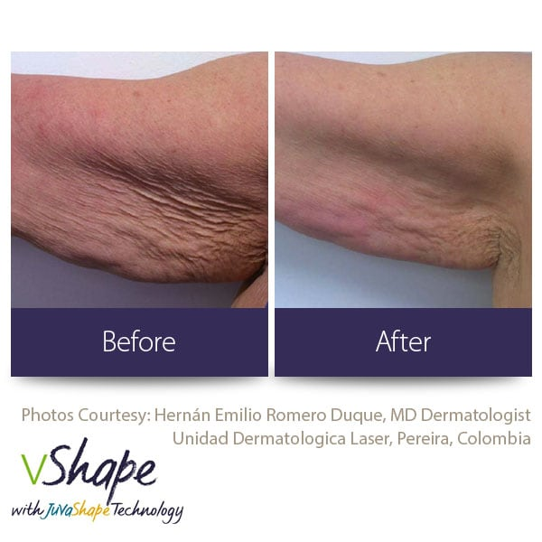 Juvashape-before-and-after-cellulite-san-diego-siti-med-spa.jpg