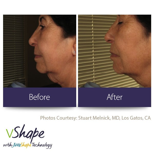 Juvashape-before-and-after-saggy-neck-san-diego-siti-med-spa.jpg
