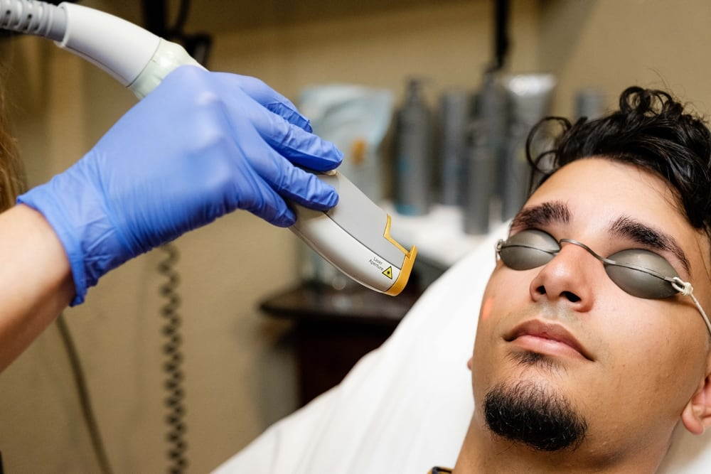 Aesthetic Treatments on man at Siti Med Spa San Diego