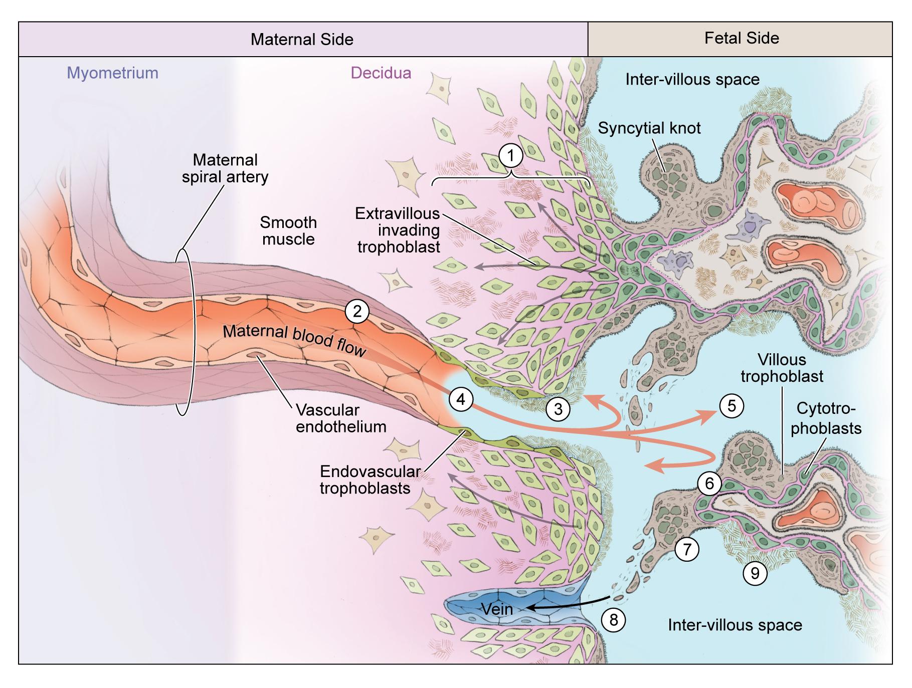 Fetal maternal interaction in severe Preeclampsia