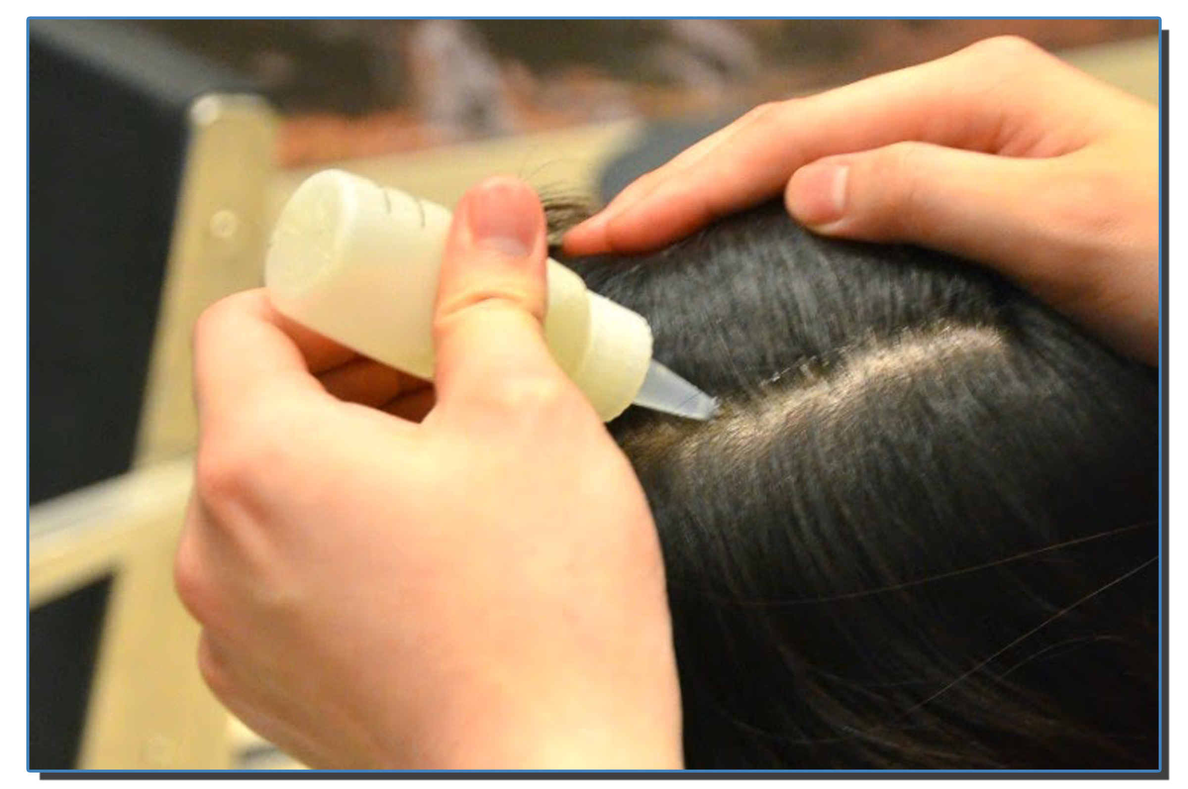 Intense Scalp Conditioning Treatment