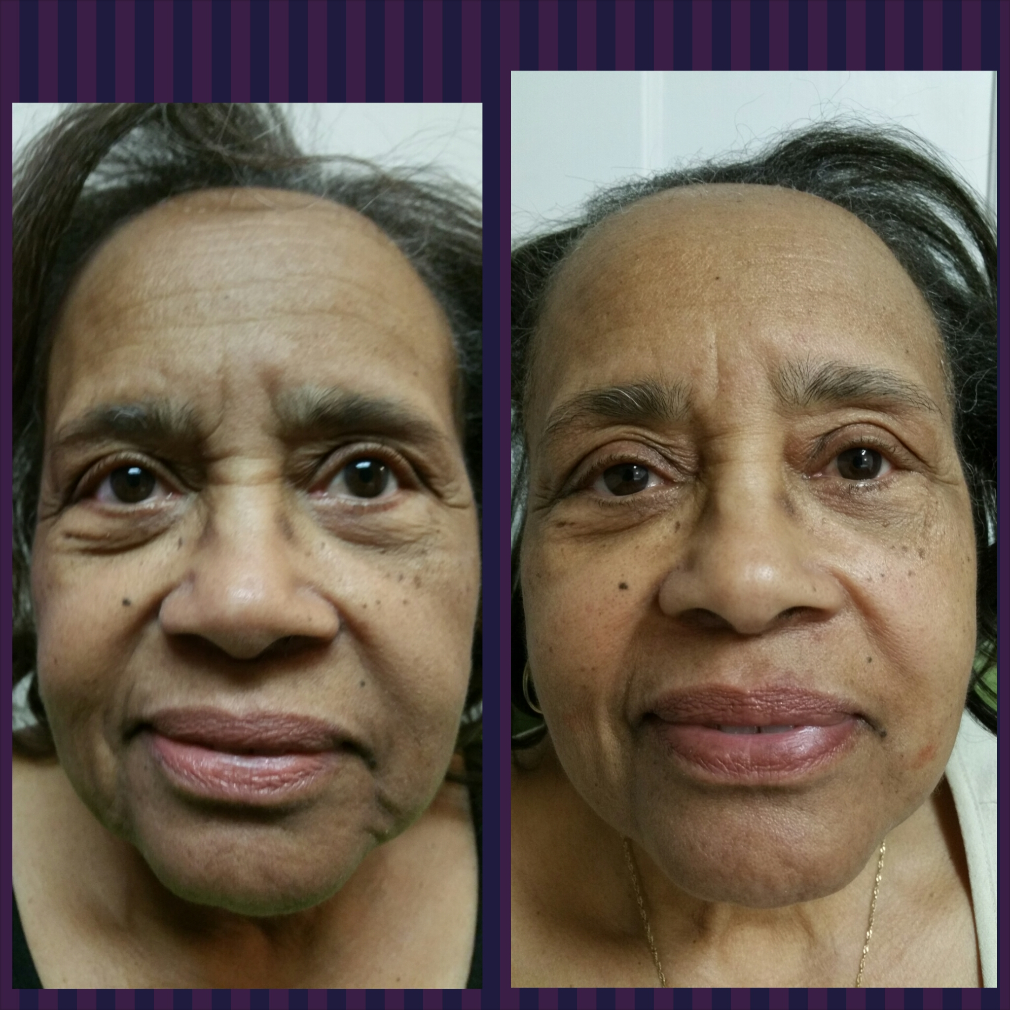 Left is before and Right is after-note the improvement in wrinkles of the forehead, bridge of nose, under eyes, nose to lip groove, and jawline. Results after complete series.