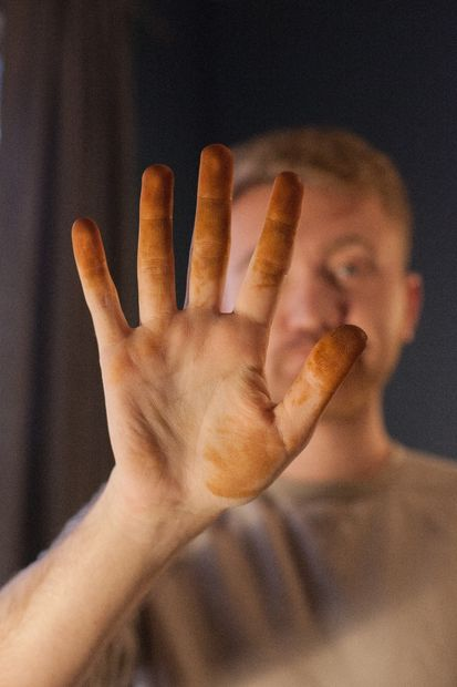 This is what your hands will look like if you don't put on gloves. People will look at your weird.