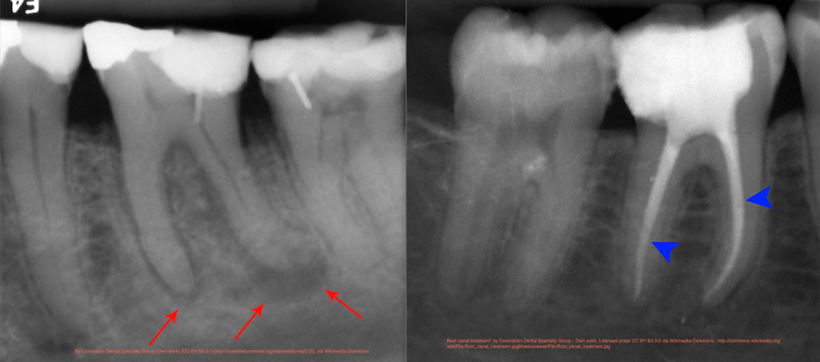 1) Abscessed tooth                                 2) Completed root canal