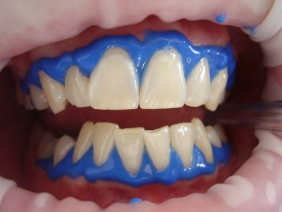 Isolation procedure involved to protect the gums during the in-chair whitening process
