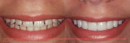 The placement of 6 veneers in this patient has both improved the appearance and closed the gaps