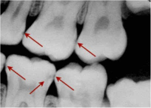 """The red arrows show decay as little """"shadows""""between the teeth. These are not visible to the naked eye when looking at the teeth from above. This person needs to improve their flossing!"""